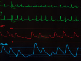 What Causes AFib?   The Emergency Center